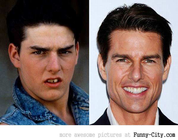 Tom Cruise owes a lot o his dentist..