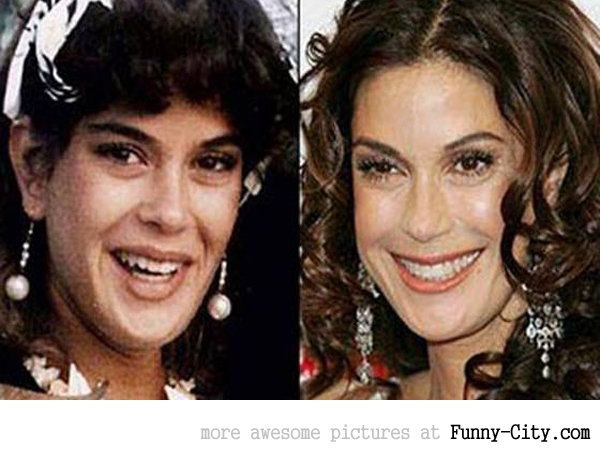 13 celebrities before and after [2487]