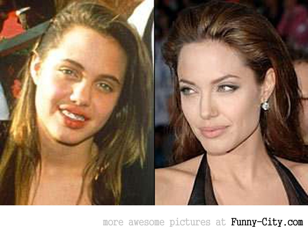 13 celebrities before and after [2517]