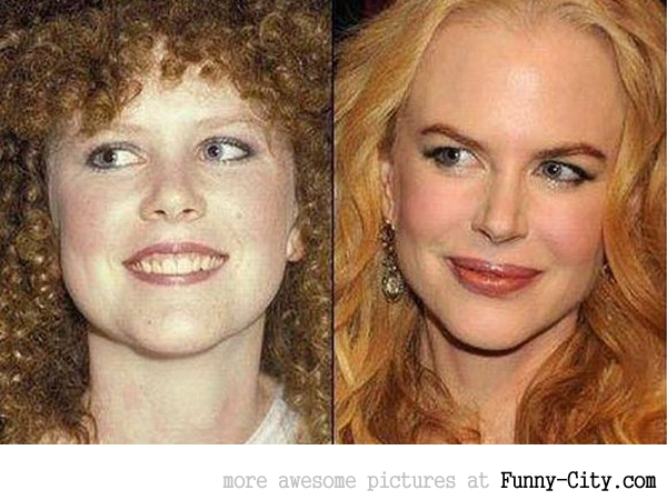 13 celebrities before and after [2493]