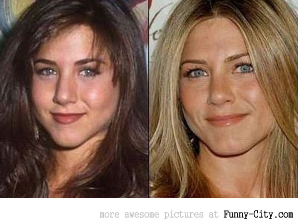 13 celebrities before and after [2502]