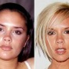 13 celebrities before and after